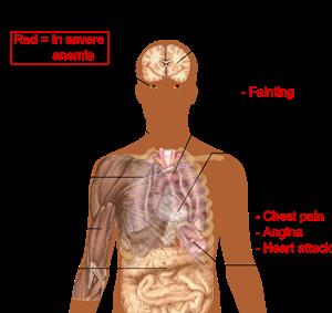Penyakit Anemia, Penyebab dan Pengobatannya