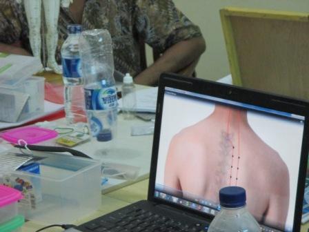 Akupunktur Terapan Angkatan II Oktober 2014